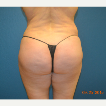 45-54 year old woman treated with Brazilian Butt Lift after 3299099