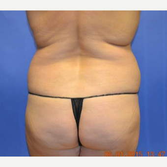 45-54 year old woman treated with Brazilian Butt Lift before 3299099
