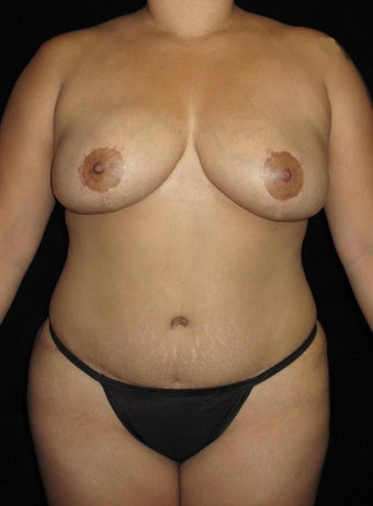 32 year old woman treated with Mommy Makeover after 2702819