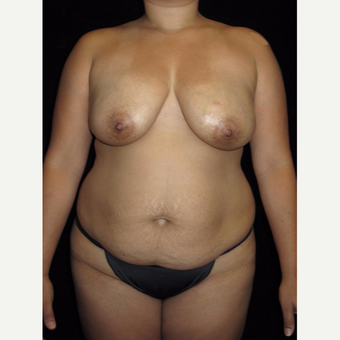 32 year old woman treated with Mommy Makeover before 2702819