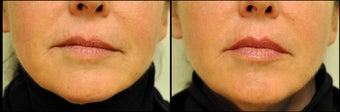 Belotero for Lip Augmentation before 981992