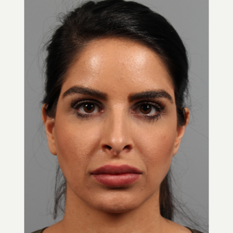 25-34 year old woman treated with Rhinoplasty before 3286555