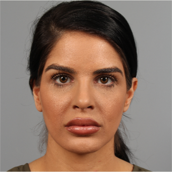 25-34 year old woman treated with Rhinoplasty after 3286555