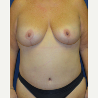 45-54 year old woman treated with Mommy Makeover after 3139974