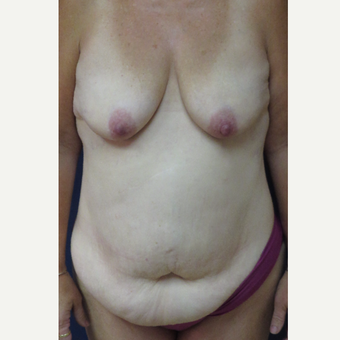 45-54 year old woman treated with Mommy Makeover before 3139974