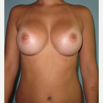 25-34 year old woman treated with Breast Augmentation after 3099525