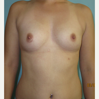 25-34 year old woman treated with Breast Augmentation before 3099525