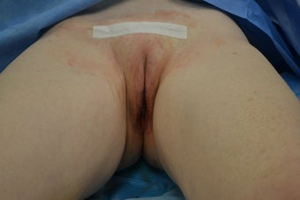 46 year old for labiaplasty and pubic lift. after 1216946