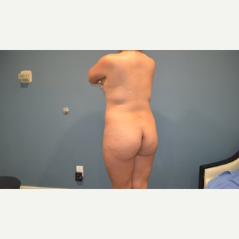 35-44 year old woman treated with Brazilian Butt Lift before 3495824