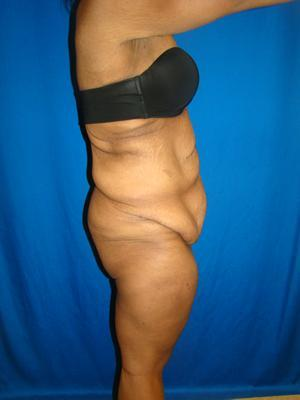 African American body contouring, Extended Tummy Tuck, Tummy Tuck (Abdominoplasty) 1361143