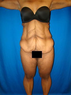 African American body contouring, Extended Tummy Tuck, Tummy Tuck (Abdominoplasty) before 1361143