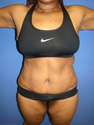 African American body contouring, Extended Tummy Tuck, Tummy Tuck (Abdominoplasty) after 1361143