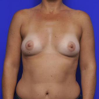 37 year old woman treated with Breast Augmentation before 3425745