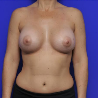 37 year old woman treated with Breast Augmentation after 3425745