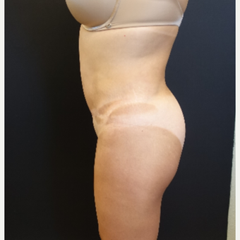 35-44 year old woman treated with Brazilian Butt Lift Revision before 3234477