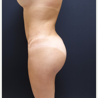 35-44 year old woman treated with Brazilian Butt Lift Revision after 3234477