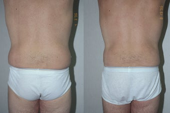 45-year-old man treated with Liposuction. after 3287556