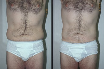 45-year-old man treated with Liposuction. before 3287556