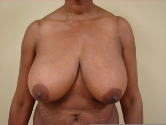 Breast Lift with Implants before 1158629
