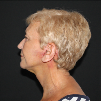 65-74 year old woman treated with Lower Face Lift after 3127270