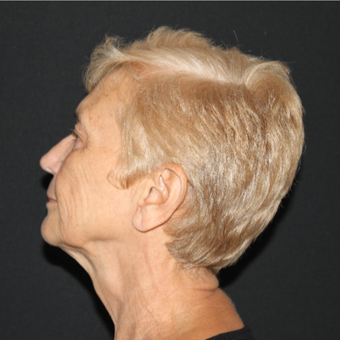 65-74 year old woman treated with Lower Face Lift before 3127270
