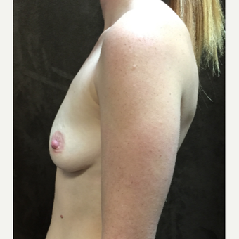 25-34 year old woman treated with Breast Augmentation before 3049446