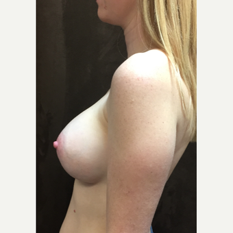 25-34 year old woman treated with Breast Augmentation after 3049446