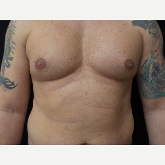 35-44 year old man treated with Male Breast Reduction before 3319929