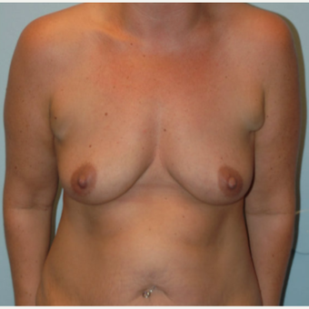 42 year old woman treated with Breast Augmentation before 3093900