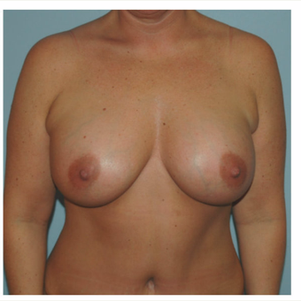 42 year old woman treated with Breast Augmentation after 3093900