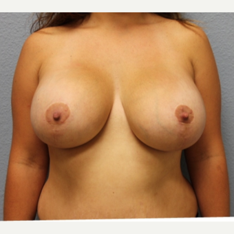 25-34 year old woman treated with Breast Lift with Implants after 3424263