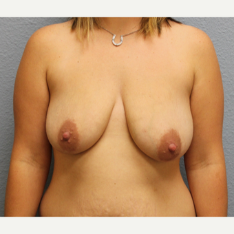 25-34 year old woman treated with Breast Lift with Implants before 3424263