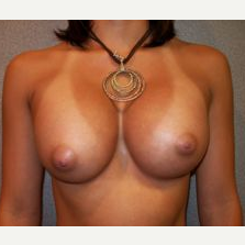 25-34 year old woman treated with Breast Implants after 3108064