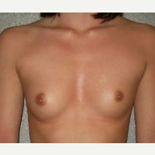 25-34 year old woman treated with Breast Implants before 3108064