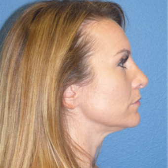 Rhinoplasty after 3806789