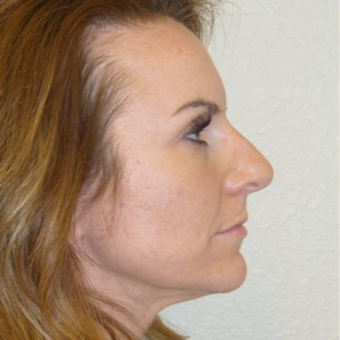 Rhinoplasty before 3806789