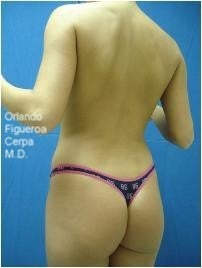Young female with skinny frame- butt implants and liposuction before 1060797