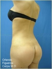 Young female with skinny frame- butt implants and liposuction after 1060797