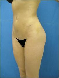 Young female with skinny frame- butt implants and liposuction 1060797
