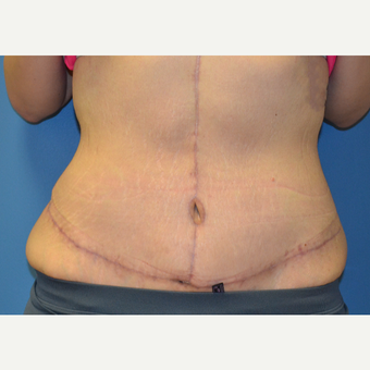 18-24 year old woman treated with Tummy Tuck after 3258793