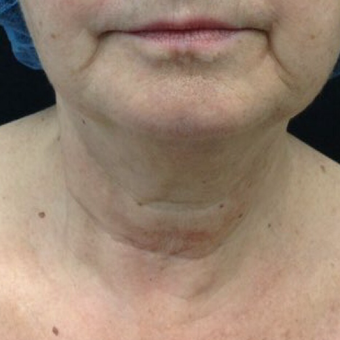 65-74 year old woman treated with Ultherapy before 3524646