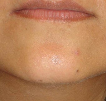 Cosmetic Mole Removal after 1422825