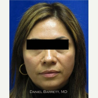 25-34 year old woman treated with Restylane before 1625047