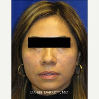 25-34 year old woman treated with Restylane after 1625047