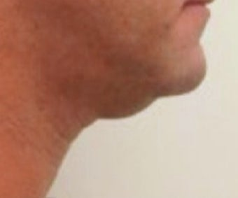 35-44 year old man treated with Kybella before 2487596