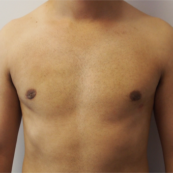 25-34 year old man treated with Male Breast Reduction after 3617411