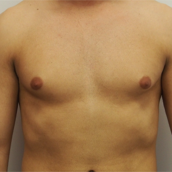 25-34 year old man treated with Male Breast Reduction before 3617411