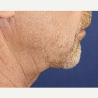 64 year old man with Neck Lift after 3064777