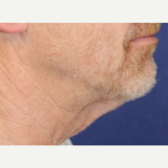 64 year old man with Neck Lift before 3064777