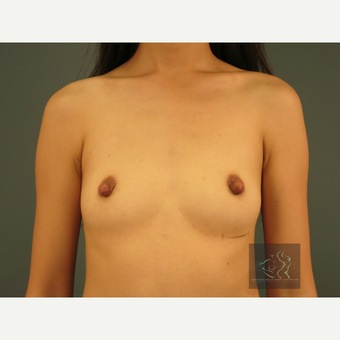 25-34 year old woman treated with Breast Implants before 3095174